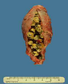 gallstones and liver detoxification